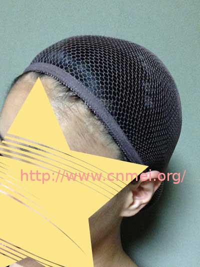シペラス ミディアムボブ[FST-40-627]のネットを頭に装着した画像